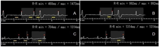 Two patients with ventricular premature beats.Figure A shows that heart rate is 71 bpm, 2-beat scanning is adopted, and acquisition is at 30–80% of R-R interval. A premature beat is encountered at the second beat during scanning. The scanning does not stop, and continuously scans the next R-R interval. Figure C shows the heart rate to be 55 bpm, 1-beat scanning is adopted, and acquisition at is 70–80% of R-R interval. Scanning is stopped immediately when a premature beat in encountered, and the scan is resumed at the next normal cardiac cycle. Figures B and D show the ECG-edit of A and C respectively.