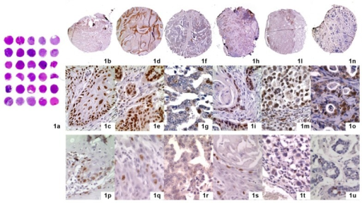 Immunohistochemical staining for Chromatin Assembly Factor 1 (CAF-1 p60) (LSAB technique) (a) the design of tissue microarray technique (TMAs) (haematoxylin and eosin staining). Each slide contains 5 × 6 cores (30 cores) sampled from neoplastic tissues; (b,c) Oral Squamous Cell Carcinoma (OSCC), b: 25×, c: 250×; (d,e) Laryngeal Squamous Cell Carcinoma (LSCC), d: 25×, e: 250×; (f,g) Prostate Carcinoma (PC), f: 25×, g: 250×; (h,i) Skin Squamous Cell Carcinoma (SSCC), h: 25×, i: 250×; (l,m) Skin Melanoma (SM), l: 25×, m: 250×; (n,o) Salivary gland tumours (SGT), n: 25×; o: 250×. Ki67 immunohistochemical staining for Ki67 (LSAB technique) is shown in p (OSCC), q (LSCC), r (PC), s (SSCC), t (SM) and u (SGT).