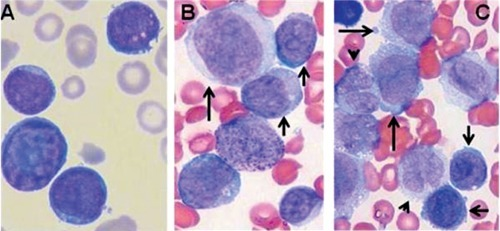 Morphology of blast cells at diagnosis (A) and in the course of fatal evolution (B,C). A) blasts appear with lymphoid morphology; B,C) blasts consist of two different clones. Blasts with lymphoid morphology (arrows) show smaller size. The additional blast cell population consists of cells of larger size and more abundant cytoplasm (long arrows). Some monocytoid cells (arrowheads) and one myeloblast with evident cytoplasmic granulations (B) are also shown. Peripheral blood, May-Grünwald-Giemsa staining (1000×).