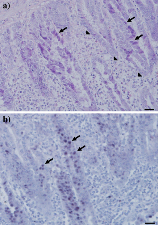 Histopathological lesions in the gizzard. Gizzard from a commercial broiler experimentally infected on the first day-of-life with virulent FAdV-1. a) Expansion of the lamina propria mucosa by mixed population of inflammatory cells (arrowheads). Basophilic intranuclear inclusion bodies in degenerated epithelial cells (arrows). Haematoxilin & eosin staining. Bar = 20 μm. b) In-situ hybridization of the same gizzard sample with positive signal for FAdV-1 DNA in epithelial cells (arrows). Bar = 20 μm.