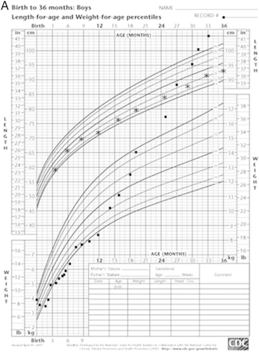 A Growth Chart Of Proband Demonstrating Marked Failure Open I