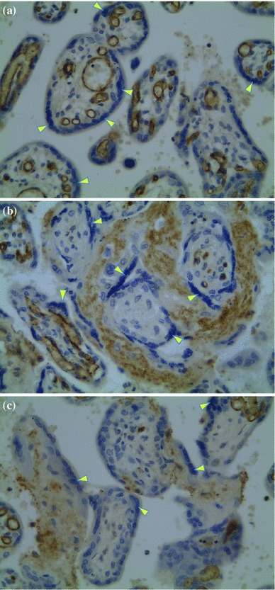 Immunohistochemical visualization of the receptor CX3CR1 in placental tissue at ×400 magnification: a normoxia (group IA); b hypoxia (group IIA); c pirfenidone in hypoxia (group II+). Immunostain-positive focal regions correspond to the vascular endothelium (arrowheads)