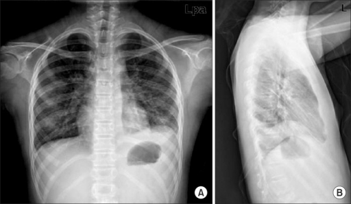 Initial chest X-ray. (A) Posterioranterior (PA) view: p ... Pleural Effusion X Ray Lateral