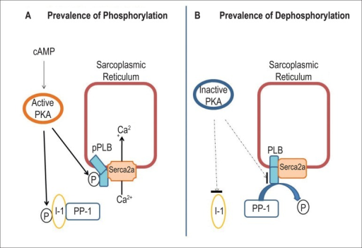 A. The prevalence of phosphorylation occurs when PKA is activated while itphosphorylates I-1, thus preventing PLB dephosphorylation. B. The prevalenceof dephosphorylation occurs when PKA is not activated. There is no PLB andI-1 phoshporylation, therefore PP-1 maintains its active state. cAMP: 3'5'cyclic adenosine monophosphate; I-1: inhibitory protein 1; P: phosphate;PKA: protein kinase A; pPLB: phosphorylated phospholamban; PLB:dephosphorylated phospholamban; PP-1: phosphatase-1; Serca2a:Ca2+ pump.