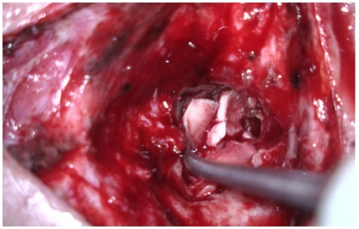Cavity is obliterated with cartilage grafts.