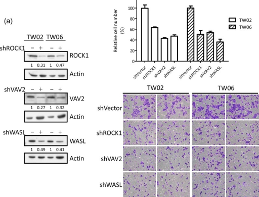 miR-148a inhibits integrin signaling pathway by targeting ITGA11, ITGB8, VAV2, and WASLThe target proteins were knockdown by transfecting shROCK1, shVAV2, and shWASL in both TW02 and TW06 cells. (a) Cell migration and (b) wound-healing assays were measured in TW02 and TW06 cells. (c) Wound-healing and (d) transwell cell migration assays were performed after the TW02 cells were cotransfected with miRNA vector or miR-148a; and cDNA vector control or target gene expressing clones (ITGA11, ITGB8, VAV2, and WASL) as indicicated. The p values between 2 groups are indicated. (e) IHC analysis was performed to determine the expression levels of endogenous ROCK1, VAV2, and WASL in 21 paired NPC tissues. Only 6 paired NPC tissues are shown. (f) The correlation between miR148a RNA expression and the protein expression of 3 target genes in 5 paired NPC tissues were indicated. Protein expression fold change in each NPC tumor was normalized with the actin and non-tumor (T/N) (left panel). The expression fold change of miR-148a (T/N) quantitated using qRT-PCR and the fold change of the endogenous protein expression of target genes (T/N) in A-E NPC tissues were listed in a table (right panel). (g) The correlation of relative miR-148a levels in T/N (X-axis) and the endogenous protein levels of ROCK1, VAV2, and WASL in T/N (Y-axis) in 5 paired NPC tissues were indicated. (r: correlation coefficient)