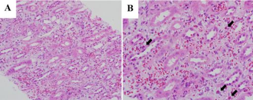 The pathologic findings of the biopsy specimen were compatible with those of acute interstitial nephritis. A Interstitial inflammation composed of eosinophils, lymphocytes, and neutrophils (×200, H&E stain). B Numerous eosinophils (arrow) in the interstitium and mild tubular cell flattening (×400, H&E stain).
