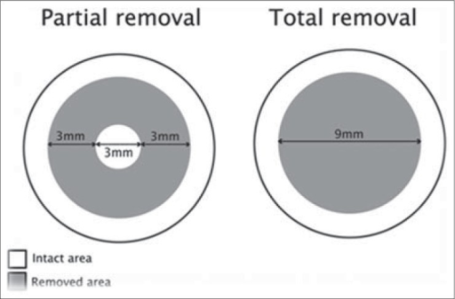 Schematic comparison of 2 surgical methods