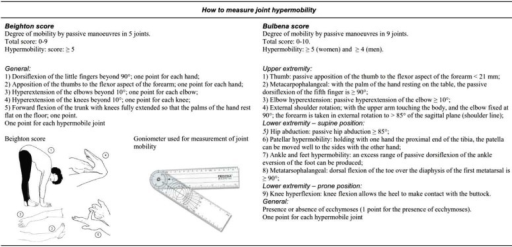 Summary of the Beighton and Bulbena scores for assessing joint hypermobility. The picture of the Beighton score is freely available at: http://www.hypermobility.org/beighton.php