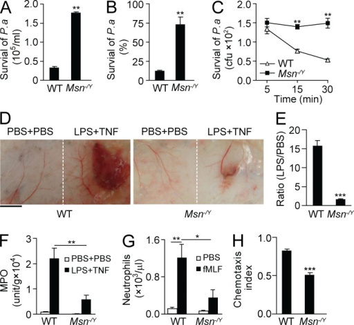Moesin regulates neutrophil microbial killing and inflammation. (A and B) WT and moesin knockout (Msn−/Y) mice were i.t. injected with P. aeruginosa (2 × 105). 8 h later, lungs were isolated, and the number (A) and percentage (B) of surviving colonies derived from lysates were determined. (C) WT and Msn−/Y neutrophils were incubated with opsonized P. aeruginosa for the indicated times, and surviving colonies were determined. (A–C) **, P < 0.01 compared with WT (Student's t test). (D–F) Microvascular injury was induced in a classical LSR by consecutive injections of 80 µg LPS and then 0.2 µg TNF or PBS as controls. (D) Macroscopic appearance of dorsal skin in WT and Msn−/Y mice after LSR. Bar, 5 mm. (E) The degree of hemorrhage in the WT and Msn−/Y mice in D was estimated based on densitometry analysis of skin samples receiving either LPS or PBS injection. Results are shown as the ratio of the value with LPS versus the value with PBS. ***, P < 0.001 (Student's t test). (F) Tissue MPO activities in skins were measured and normalized by tissue weight. Data are presented as V-Max value/g tissue. **, P < 0.01 (Student's t test). (G) WT or Msn−/Y mice were i.p. injected with 10 nM fMLF, and neutrophil emigration into the peritoneal cavity was assessed after 4 h. For all groups, n = 3–4 mice. *, P < 0.05; **, P < 0.01 (Student's t test). (H) WT and Msn−/Y neutrophils were exposed to a 10-nM fMIFL gradient, and CI was calculated by the ratio of net migration in the correct direction to the total migration length. ***, P < 0.001 compared with WT (Student's t test). Data are representative of (D) or are compiled from (A–C and E–H) three independent experiments (mean and SEM in A–C and E–H).