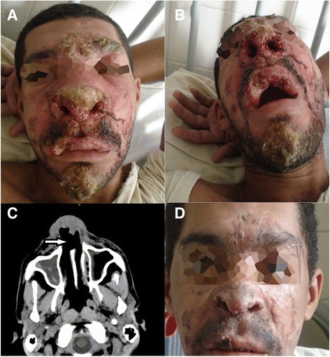 An HIV-infected Patient With Mucocutaneous Leishmaniasi