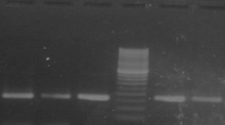 Sizing of 257bp long PCR products of c-kit exon 11 on 2 % agarose in AML cases. 50bp Ladder in lane 4th and cases in 1, 2, 3, 5 and 6th lane.
