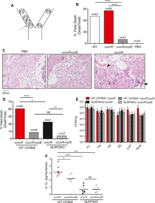 The GBS pigment causes fetal injury by NLRP3 inflammasome-dependent and NLRP3 inflammasome-independent mechanismsFemale pregnant wild-type (CD-1, C57BL6) or NLRP3-deficient mice were injected in utero with 106–7 CFU of GBS WT, ΔcovR, or ΔcovRΔcylE and monitored for preterm birth. Surgery and GBS inoculation for each pregnant mouse were performed independently. Data shown are representative of experiments with 6 animals per group for each GBS strain and two animals were used for saline controls.Scheme of pup numbering in utero and injection site between fetuses P1 and P2 is shown.In utero fetal death in wild-type CD-1 mice due to infection with GBS WT, hyperhemolytic ΔcovR, and non-hemolytic ΔcovRΔcylE. Fetal death is represented by the number of dead fetuses/total number of fetuses obtained from six pregnant mice per group. 'n' indicates total number of pups (both live and dead); ****P < 0.0001, Fisher's exact test.H&E staining of uterine tissue. Open arrow indicates the presence of few mononuclear cells, whereas filled arrows indicate increased infiltration of inflammatory cells and necrotic debris.Fetal death due to infection with hyperhemolytic GBS ΔcovR and non-hemolytic ΔcovRΔcylE in WT C57BL6 and NLRP3 inflammasome-deficient mice; fetal death is represented by the number of dead fetuses/total number of fetuses obtained from 6 pregnant mice per group. 'n' indicates total number of pups (both live and dead); *P = 0.011, **P = 0.0015, ****P < 0.0001, Fisher's exact test. Fetal death due to ΔcovRΔcylE in WT C57BL6 and NLRP3KO mice was not significant and is indicated as NS; P = 0.31, Fisher's exact test.Bacterial burden in fetal pups and uterine horns from mice infected with the various GBS strains (n = 6/pup; of note, pups that were delivered preterm were excluded from CFU enumeration. Scheme of pup numbering is shown in (A). RUH and LUH indicate right uterine horn and left uterine horn, respectively. CFUs are not significantly different between any of the groups (ANOVA, P = 0.6, error bars ± SEM).IL-1β levels in GBS-infected tissues (placenta and fetus, n = 6/group) was measured by Luminex assay (*P = 0.025, ***P = 0.0002, ****P < 0.0001, Bonferroni's multiple comparison test following ANOVA). IL-1β levels was not significantly different in NLRP3KO mice infected with ΔcovR compared to NLRP3KO mice infected with ΔcovRΔcylE mice and is indicated as NS; P = 0.99.