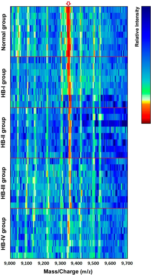 Simulated electrophoretogram of proteins or peptide segments with an m/z of 9348 Da in the normal and HB groups.