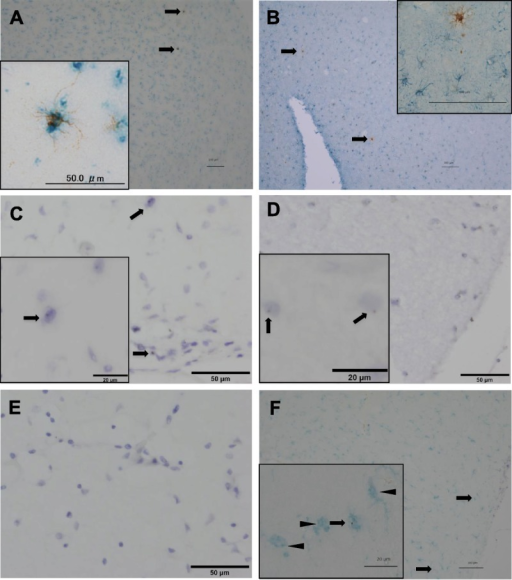 Double staining of donor-derived cells by immunohistochemistry (A, B) and in situ hybridization (C–F). (A) Double staining of donor-derived cells with anti–HLA-A2 antibody (brown) and anti-Iba1 antibody (blue). Inset: The image at higher magnification. (B) Double staining of donor-derived cells with anti–HLA-A2 antibody (brown) and anti–glial fibrillary acidic protein antibody (blue). Inset: The image at higher magnification. (C) In situ hybridization of the patient sample using anti-Yq12 probes (brown dot) with counterstaining of nuclei by Mayer hematoxylin solution. Arrows show Yq12-positive cells indicating donor origin. Inset: the image at higher magnification. (D) In situ hybridization of the sample from the positive control. Inset: the image at higher magnification. Arrows show Yq12-positive cells. (E) In situ hybridization of the sample from the negative control. (F) Double staining of donor-derived cells using anti-Yq12 probes (brown dot) and anti-Iba antibody (blue). Arrows show double-positive cells indicating donor origin; arrowheads show Iba1-positive and Yq12-negative cells indicating host origin. Inset: the image at higher magnification. Scale bar = 100 μm.