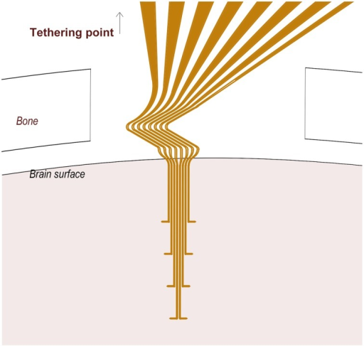 A schematic of the 3D flexible electrode array. Note the Z-shaped proximal part of the electrode array located between the cranium and the brain surface, and the tips (10 μm) of the distal protrusions which serve as recording sites.