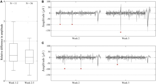 Characterization of relative amplitudes of single unit spikes with high waveform correlation (>0.96) during two consecutive weeks. (A) Relative difference in amplitude shown as median and percentile values. The amplitude of units showed a tendency to increase over time, but this difference was not significant (p > 0.05). (B,C) Representative recordings (100 ms long) during week 2 and 3 in two different animals. Recordings are made from the same channel and show highly correlated units (waveform correlation > 0.96). Mean waveform ± standard deviation is shown to the right of each recording. In some cases, the amplitude of the units increased from week 2 to 3 (B), whereas in some other cases, the amplitude decreased (C).