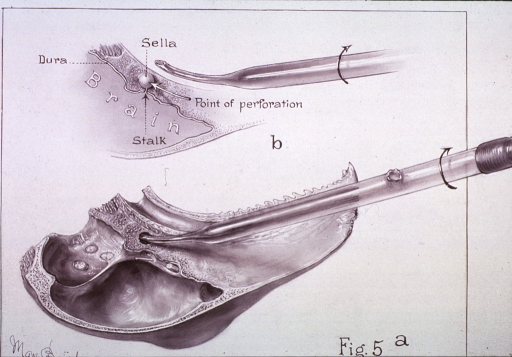 <p>Two views of the skull and brain cavity of a rabbit illustrating the point of perforation.</p>