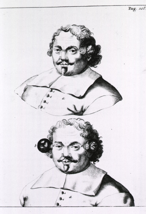 <p>Head and shoulders views of a man with cupping bells applied to the head.</p>