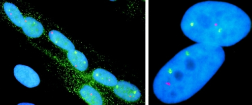 Detection of MyHC  and dystrophin RNA foci in  myotube nuclei (left). Nuclei  of a myotube show variable  positions of MyHC and dystrophin RNA foci. Most nuclei have two MyHC signals  (green) and a single dystrophin signal (red). The image  illustrates the developmental stage-specific expression  of MyHC and dystrophin. A  single myoblast nucleus (left,  bottom left) outside of the  myotube has neither MyHC  nor dystrophin RNA foci.  The myotube cytoplasm is visualized by the presence of cytoplasmic MyHC mRNA (green). (Right) Two myotube nuclei demonstrate that the RNA foci detected  by a MyHC genomic probe (32 kb, green) and a dystrophin midgene genomic probe (16 kb, red) are of comparable size and intensity.  This suggests that there is roughly similar molar abundance of each RNA in these foci.