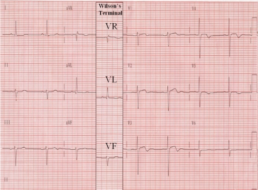 The column with leads VR, VL, and VF, recorded via the Wilson's terminal in the 2nd ECG, has been superimposed on the 1st ECG to aid in the comparison of leads VR, VL, and VF with aVR, aVL, and aVF.