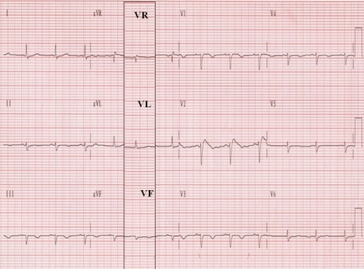 "This ""low voltage"" ECG was recorded in an 85-year old woman with marked peripheral edema. The column with leads VR, VL, and VF, recorded via the Wilson's terminal in the 2nd ECG, has been superimposed on the 1st ECG to aid in the comparison of leads VR, VL, and VF with aVR, aVL, and aVF."