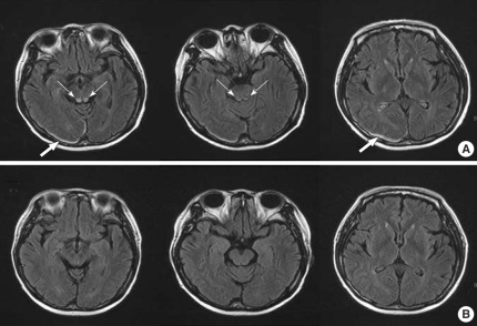 (A) The initial MRI demonstrates symmetric high signal intensities in the posterior aspect of the medulla and the periaqueductal area of the midbrain (narrow arrows) and an occipitoparietal hematoma (broad arrows). Axial FLAIR. (B) Follow-up MRI 1 month later shows nearly complete resolution of the previous abnormal signal intensities in the posterior aspect of the medulla, the periaqueductal area of the midbrain, and the occipitoparietal hematoma.