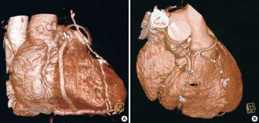 Serial images of 3-D CT at immediate and 6-months postoperatively in 65-yr old man. Note the patent saphenous vein including aortic connector site (A) and the severe stenosis in the midportion of the saphenous vein (arrow) (B). But proximal site is widely patent.