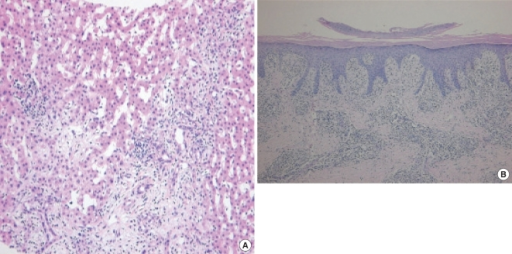 Findings of tissue biopsy findings. (A) Liver. Stromal edema is observed around the portal tract. Both focal necrosis and infiltration of lymphocytes, eosinophils and neutrophils in the lobule are also observed (periodic acid-Schiff stain, ×200). (B) Skin. The epidermis shows parakeratosis, acanthosis with elongation of rete ridges, and exocytosis of lymphocytes. A dense perivascular inflammatory infiltrate is seen in A the dermis (H&E, ×100).