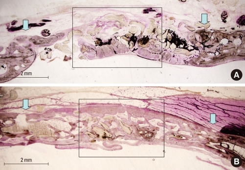 (A) Histologic view of the uncoated bone group after 8 weeks. New bone formation was noted throughout the defect. Arrows indicate the margin of the bone defect. (B) Histologic view of the peptide coated bone group after 8 weeks. New bone formation was obvious, and the defect tended to coalesce with new bone. Arrows indicate the margin of the bone defect (H&E staining).