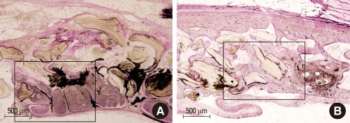 (A) Histologic view of the uncoated bone group at 8 weeks. Higher magnification of the area marked in Fig. 5A. New bone formation was observed in the central area of the defect. (B) Histologic view of the coated bone group at 8 weeks. Higher magnification of the area marked in Fig. 5B. New bone formation was observed evenly throughout the defect with highly cellular marrow spaces, osteoids, and osteoblsts (H&E staining).