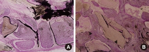 (A) Higher magnification of Fig. 6A. Multiple bony islands fill the central part of the defect (⇒). (B) Higher magnification of Fig. 6B. The grafted bone is integrated fully with the new bone (◂) and shows a more advanced stage of remodeling and consolidation (▸) (H&E staining).