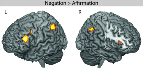 fMRI effect of negation in the main clause. The whole-brain ANOVA revealed significant activity in the left inferior frontal gyrus (LIFG, BA 45), left inferior parietal lobule (LIPL), right angular gyrus (RAG), right anterior insula (RAI), and left precentral gyrus (LPRE).