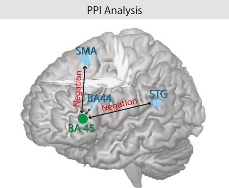 Psychophysiological interaction analysis of negation. Illustration of the functional coupling between the seed region pars triangularis (BA 45) and the pars opercularis (BA 44), the left STG, and the SMA. The processing of negations triggers the coupling of the hemodynamic response between the brain regions.
