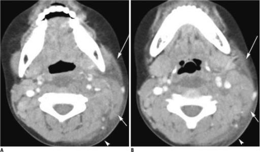 Kawasaki disease in 5-year-old boy.A, B. CT demonstrate | Open-i