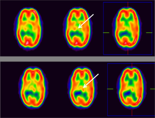 Brain perfusion SPECT analysis. The low perfusion in the left thalamus in the baseline study (white arrow, upper lane), has been corrected in subsequent images at 24 weeks (white arrow, lower lane) after infusion of cord blood.