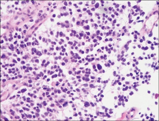 The histopathologic finding of bronchoscopic biopsy tissue. This slide shows round to oval tumor cells which have minimal cytoplasm and are about twice as large as neutrophil. Their nucleus are 'salt and pepper' chromatin pattern and don't have a prominent nucleoli. We can also find frequent mitoses. These pathologic findings are consistent with small cell carcinoma (H&E stain, ×400).