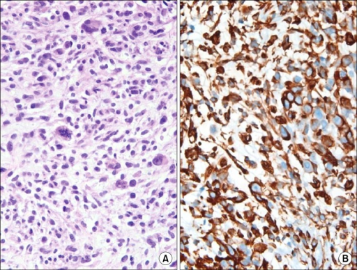 The histopathologic finding of percutaneous biopsy of peripheral lung mass. This slide reveals sarcoma which is composed of atypical spindle cells with frequent atypical mitoses. The pathologic features of uterine sarcoma elements resemble this (A). Vimentin immunohistochemistry was positve in this lung lesion (B) (A, H&E stain, ×400; B, vimentin immunohistochemistry, ×400).