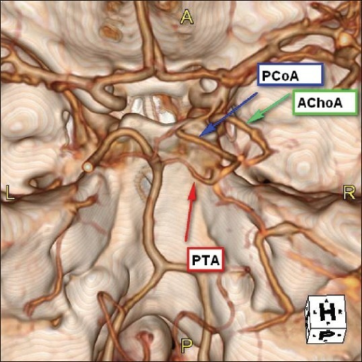 Three-dimensional computed tomographic (CT) angiography showing a lateral petrosal variant of persistent trigeminal artery (PTA) as it exits immediately superior to the cranial end of petroclival fissure; just medial to Meckel's cave and closely related with the ophthalmic branch of trigeminal nerve. It courses posterior and medially to reach the basilar artery before its bifurcation. It relationships with posterior communicating artery (PcomA) and anterior choroidal artery (AchoA) are also showed