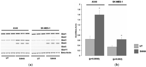 The histone deacetylase inhibitor Vorinostat (SAHA) induces only Glut 3 and Glut-4 in NSCLC cell lines. (a) A549 and SK-MES-1 cell lines were treated with or without the histone deacetylase inhibitor Vorinostat (SAHA), and mRNA expression of various Glut family members were examined by RT-PCR. (b) Densitometric analysis of Glut-3 expression. Beta-actin levels were used for normalization purposes. Data is expressed as mean ± SEM. Statistical analysis was performed using a Student's t test. (UT, untreated; SAHA, Vorinostat).