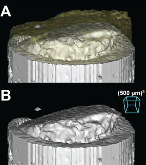 Three-dimensional bone reconstructions showing a variably proud bone-cartilage interface with respect to the adjacent host (A) with and (B) without a transparent cartilage layer overlaid on top of the bone.