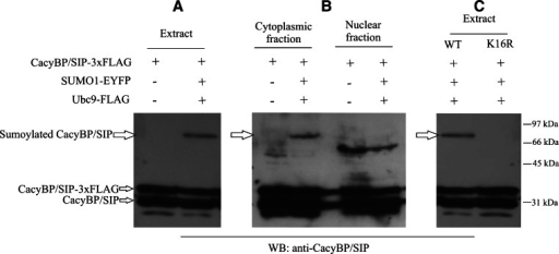 Sumoylation of CacyBP/SIP in neuroblastoma NB2a cells. Western blot developed with anti-CacyBP/SIP antibody shows sumoylated CacyBP/SIP in cell extract (A) and in subcellular fractions of NB2a cells (B). In each case 80 μg of protein was applied on the gel. Panel C shows that wild type CacyBP/SIP (WT) is sumoylated in NB2a cell extract while K16R CacyBP/SIP mutant is not. Western blot images representative for 3 experiments performed are shown
