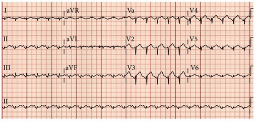 Initial ECG on presentation showing ST-segment elevation in leads V2 to V4, II, III, and aVF.