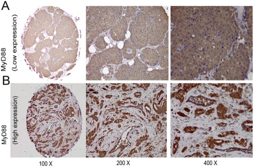 Representative MyD88 immunohistochemical staining in large (200× and 400× magnification) and small images (100× magnification).(A) Low immunostaining of MyD88 in invasive ductal breast carcinoma. (B) High immunostaining of MyD88 in invasive ductal breast carcinoma.