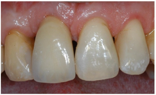 The definitive, ceramo-metallic restoration in position. The prosthetic restoration showed a good aesthetic integration: patient's smile aesthetics was improved and a satisfying harmony and symmetry with the contralateral tooth was achieved.