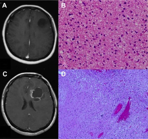 Gadolinium enhanced magnetic resonance imaging (MRI) scans and hematoxylin and eosin (HE)-stained sections before the first and second surgeries. (A) A pretreatment gadolinium-enhanced MRI scan showing a non-enhanced round tumor in the left frontal lobe. (B) Photomicrographs of HE-stained sections showing a fibrillary astrocytoma. (C) A gadolinium-enhanced MRI scan at 18 months after tomotherapy showing the cystic lesion with a well-enhanced cyst wall. (D) Photomicrograph of an HE-stained section of the specimen obtained at the second surgery showing the malignant transformation to an anaplastic astrocytoma.