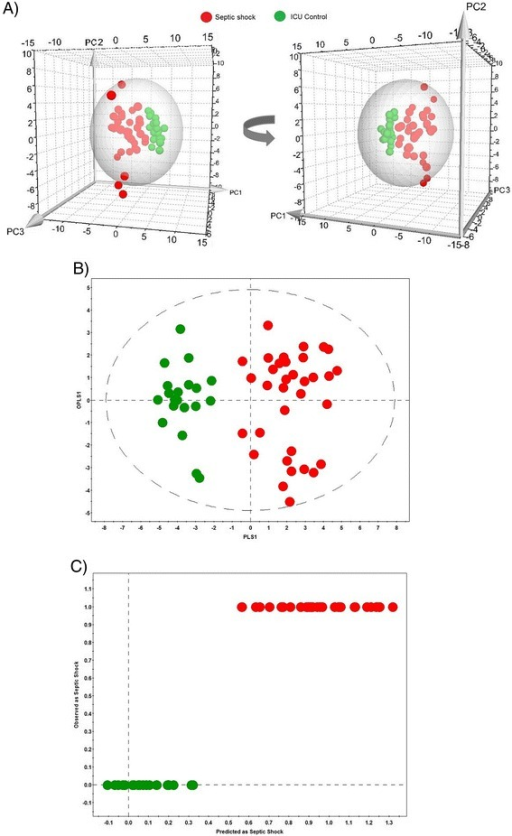 Septic shock patients versus ICU controls. Statistical analysis for septic shock patients (red) and ICU controls (green) based on the combined metabolomics and cytokine/chemokine dataset. (A) Three-dimensional PCA score scatter plot; (B) OPLS-DA score scatter plot; (C) 'Predicted vs. Observed' plot. The groups are well clustered along the axes of the three principal components in the three-dimensional PCA plot. Three septic shock samples are placed outside the sphere that indicates the 95% confidence interval of the Hotelling's T-squared distribution. ICU, intensive care unit; OPLS-DA, orthogonal partial least squares discriminant analysis; PCA, principal component analysis.