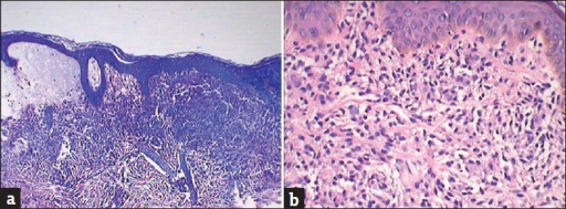 (a) Sub-epidermal bullae with a dense cellular infiltration in the upper dermis (H and E, ×200). (b) Dense mast cell infiltration with some eosinophils in the upper dermis (H and E, ×400)