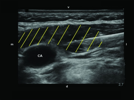 Spread of the local anesthetic (yellow lines).CA=carotid artery; d=dorsal; l=lateral; m=medial; v=ventral.