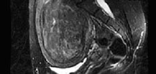 Sagittal T2-weighted image depicting a 471 cc heterogeneously hyperintense fibroid.